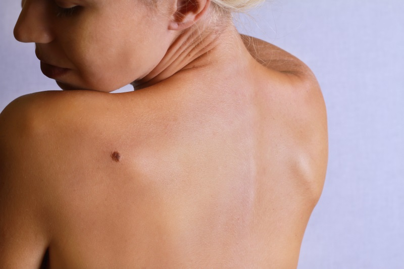 How to reduce your risk of skin cancer